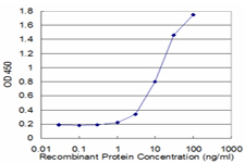 Detection limit for recombinant GST tagged MAGED1 is approximately 1 ng/ml as a capture antibody.