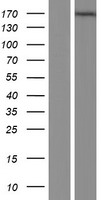 MAGI1 Protein - Western validation with an anti-DDK antibody * L: Control HEK293 lysate R: Over-expression lysate
