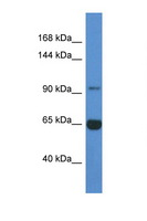MAN2A2 / Alpha-Mannosidase II Antibody - MAN2A2 antibody Western blot of Mouse Liver lysate. Antibody concentration 1 ug/ml. This image was taken for the unconjugated form of this product. Other forms have not been tested.