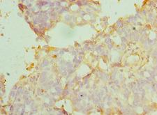 MANF / ARMET Antibody - Immunohistochemistry of paraffin-embedded human endometrial cancer using antibody at 1:100 dilution.