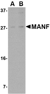 Western blot of MANF in rat brain tissue lysate with MANF antibody at (A) 1 and (B) 2 ug/ml. Below: Immunohistochemistry of MANF in human brain tissue with MANF antibody at 2.5 ug/ml.