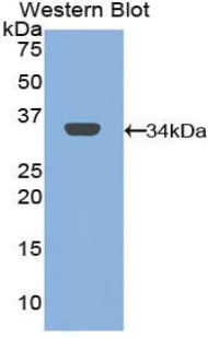 Mannose Receptor / CD206 Antibody - Western blot of recombinant Mannose Receptor / CD206.  This image was taken for the unconjugated form of this product. Other forms have not been tested.