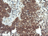 IHC of paraffin-embedded Adenocarcinoma of Human ovary tissue using anti-MAOA mouse monoclonal antibody.