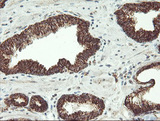 IHC of paraffin-embedded Carcinoma of Human prostate tissue using anti-MAOA mouse monoclonal antibody.