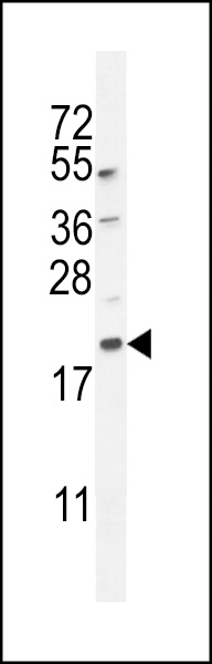 APG8a/b (MAP1LC3A/B) western blot of mouse lung tissue lysates (35 ug/lane). The MAP1LC3A antibody detected the MAP1LC3A protein (arrow).