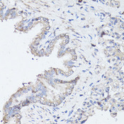 MAP1LC3B / LC3B Antibody - Immunohistochemistry of paraffin-embedded rat lung using MAP1LC3B antibody at dilution of 1:100 (40x lens).