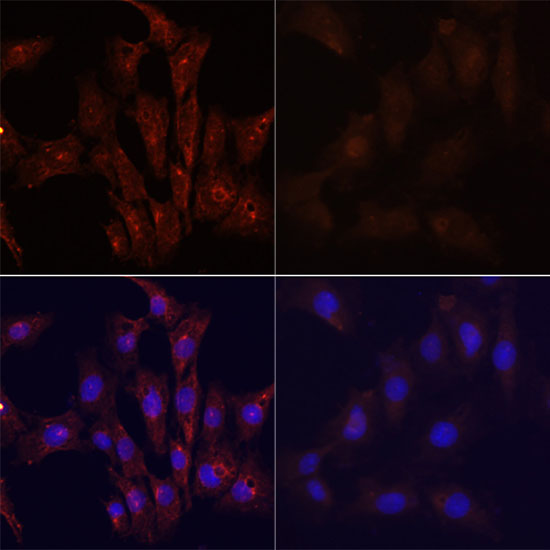 MAP1LC3B / LC3B Antibody - Immunofluorescence analysis of C6 cells using MAP1LC3B antibody at dilution of 1:100. C6 cells were treated by Chloroquine (50 μM) for 20 hours(left). Blue: DAPI for nuclear staining.