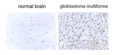 LC3B staining in glioblastoma multiforme tissues.  This image was taken for the unconjugated form of this product. Other forms have not been tested.