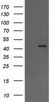 HEK293T cells were transfected with the pCMV6-ENTRY control (Left lane) or pCMV6-ENTRY MAP2K1 (Right lane) cDNA for 48 hrs and lysed. Equivalent amounts of cell lysates (5 ug per lane) were separated by SDS-PAGE and immunoblotted with anti-MAP2K1.