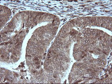 IHC of paraffin-embedded Adenocarcinoma of Human endometrium tissue using anti-MAP2K1 mouse monoclonal antibody.