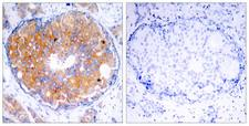 MAP2K2 / MKK2 / MEK2 Antibody - Immunohistochemistry analysis of paraffin-embedded human breast carcinoma, using MEK2 Antibody. The picture on the right is blocked with the synthesized peptide.
