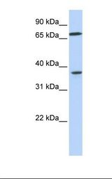 MAP2K3 / MEK3 / MKK3 Antibody - 721_B cell lysate. Antibody concentration: 1.0 ug/ml. Gel concentration: 12%.  This image was taken for the unconjugated form of this product. Other forms have not been tested.