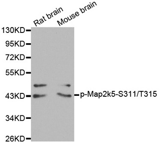 Western blot analysis of extracts from Rat and Mouse brain tissue.
