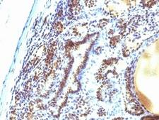 MAP3K1 / MEKK1 Antibody - Formalin-fixed, paraffin-embedded human thyroid carcinoma stained with MAP3K1 antibody (2F6).  This image was taken for the unmodified form of this product. Other forms have not been tested.
