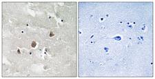 MAP3K1 / MEKK1 Antibody - Immunohistochemistry analysis of paraffin-embedded human brain, using MAP3K1 (Phospho-Thr1400) Antibody. The picture on the right is blocked with the phospho peptide.