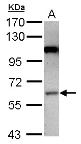 Sample (30 ug of whole cell lysate) A: NT2D1 7.5% SDS PAGE MAP3K3 / MEKK3 antibody diluted at 1:1000