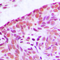Immunohistochemical analysis of MEKK3 staining in human breast cancer formalin fixed paraffin embedded tissue section. The section was pre-treated using heat mediated antigen retrieval with sodium citrate buffer (pH 6.0). The section was then incubated with the antibody at room temperature and detected using an HRP conjugated compact polymer system. DAB was used as the chromogen. The section was then counterstained with hematoxylin and mounted with DPX.