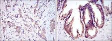 MAP3K5 / ASK1 Antibody - IHC of paraffin-embedded breast cancer tissues (left) and prostate tissues (right) using MAP3K5 mouse monoclonal antibody with DAB staining.