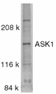 MAP3K5 / ASK1 Antibody - Western blot analysis ASK1 in SW1353 whole cell lysate with ASK1 antibody at 0.5 µg/ml.