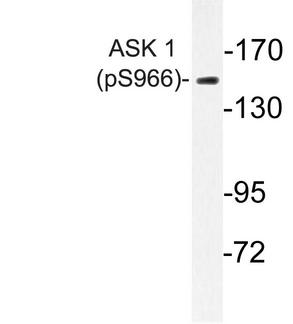 Western blot of p-ASK1 (S966) pAb in paraffin-embedded human breast carcinoma tissue.