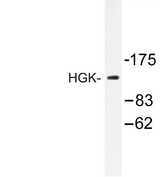MAP4K4 Antibody - Western blot of HGK (R430) pAb in extracts from HUVEC cells.