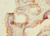 Immunohistochemistry of paraffin-embedded human prostate cancer at dilution 1:100