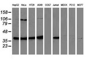 Western blot of extracts (35 ug) from 9 different cell lines by using anti-MAPK7 monoclonal antibody.