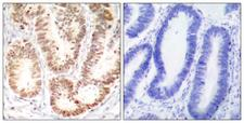 MAPK14 / p38 Antibody - Immunohistochemistry analysis of paraffin-embedded human colon carcinoma, using p38 MAPK (Phospho-Tyr182) Antibody. The picture on the right is blocked with the phospho peptide.