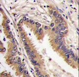 MAPK4 / ERK4 Antibody - Formalin-fixed and paraffin-embedded human lung carcinoma tissue reacted with ERK4 antibody , which was peroxidase-conjugated to the secondary antibody, followed by DAB staining. This data demonstrates the use of this antibody for immunohistochemistry; clinical relevance has not been evaluated.