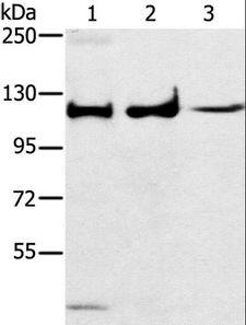 MAPK7 / ERK5 Antibody - Western blot analysis of Human fetal muscle tissue, A172 and K562 cell, using MAPK7 Polyclonal Antibody at dilution of 1:250.