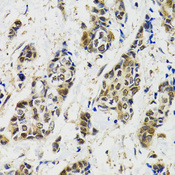 MAPK9 / JNK2 Antibody - Immunohistochemistry of paraffin-embedded human breast cancer using MAPK9 antibodyat dilution of 1:100 (40x lens).