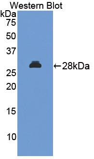 MAPKAPK2 / MAPKAP Kinase 2 Antibody - Western blot of MAPKAPK2 / MAPKAP Kinase 2 antibody.