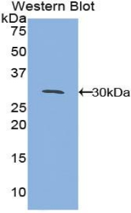 MAPKAPK2 / MAPKAP Kinase 2 Antibody - Western blot of recombinant MAPKAPK2 / MK2.