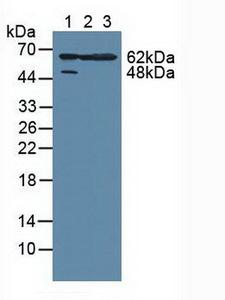 MAPKAPK2 / MAPKAP Kinase 2 Antibody - Western Blot; Sample: Lane1: Human Hela Cells; Lane2: Human A549 Cells; Lane3: Mouse Large Intestine Tissue.