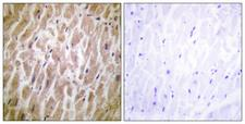MAPKAPK2 / MAPKAP Kinase 2 Antibody - Immunohistochemistry analysis of paraffin-embedded human heart tissue, using MAPKAPK2 Antibody. The picture on the right is blocked with the synthesized peptide.