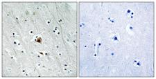 MAPKAPK2 / MAPKAP Kinase 2 Antibody - Immunohistochemistry analysis of paraffin-embedded human brain, using MAPKAPK2 (Phospho-Ser272) Antibody. The picture on the right is blocked with the phospho peptide.
