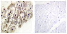 MAPKAPK2 / MAPKAP Kinase 2 Antibody - Immunohistochemistry analysis of paraffin-embedded human heart, using MAPKAPK-2 (Phospho-Thr222) Antibody. The picture on the right is blocked with the phospho peptide.