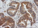 IHC of paraffin-embedded Adenocarcinoma of Human colon tissue using anti-MAPRE2 mouse monoclonal antibody.
