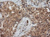 IHC of paraffin-embedded Carcinoma of Human lung tissue using anti-MAPRE2 mouse monoclonal antibody.