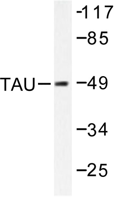 Western blot of Tau (K225) pAb in extracts from MDA-MB-435 cells.