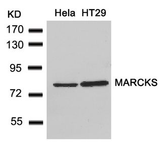 Western blot of extracts from HeLa and HT29 cells using MARCKS(Ab-162) antibody.
