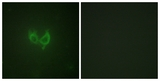 Immunofluorescence of HUVEC cells, using MARK2 antibody. The picture on the right is treated with the synthesized peptide.