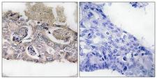 MARK2 Antibody - Peptide - + Immunohistochemistry analysis of paraffin-embedded human colon carcinoma tissue using MARK2 antibody.