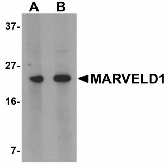 MARVELD1 Antibody - Western blot of MARVELD1 in mouse heart tissue lysate with MARVELD1 antibody at (A) 1 and (B) 2 ug/ml.