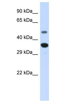 MAS1 / MAS antibody Western Blot of Fetal Liver. Antibody dilution: 1 ug/ml.  This image was taken for the unconjugated form of this product. Other forms have not been tested.