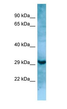 MASP1 / MASP antibody Western Blot of HT1080.  This image was taken for the unconjugated form of this product. Other forms have not been tested.