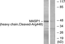 Western blot of extracts from A549 cells, treated with etoposide 25 uM 24h, using MASP1 (heavy chain, Cleaved-Arg448) Antibody. The lane on the right is treated with the synthesized peptide.