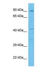 Western blot of MASP1 Antibody with human 721_B Whole Cell lysate.  This image was taken for the unconjugated form of this product. Other forms have not been tested.