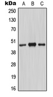 Western blot analysis of MASP1 HC expression in A549 colchicine-treated (A); mouse lung (B); rat liver (C) whole cell lysates.