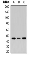 Western blot analysis of MASP1 LC expression in HEK293T (A); Raw264.7 (B); H9C2 (C) whole cell lysates.